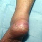 Ulcera wonden